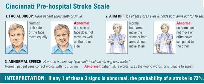 stroke-scale